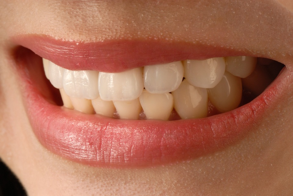 An image of a woman showing her front teeth which have veneers fitted.