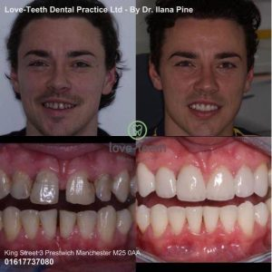 An image of a smile makeover, showing the before and after of a man's teeth following dental treatment at Love-Teeth Dental Practice.