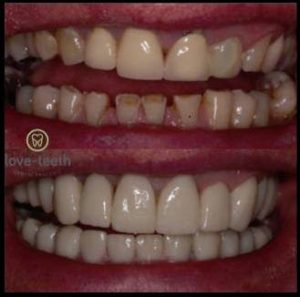 An image of a before and after a person's teeth after after their teeth have been built up with composite bonding and veneers at Love-Teeth Dental Practice.