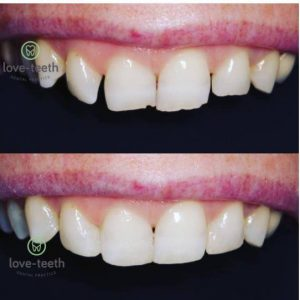 An image of a before and after of a person's teeth following composite bonding and veneers.