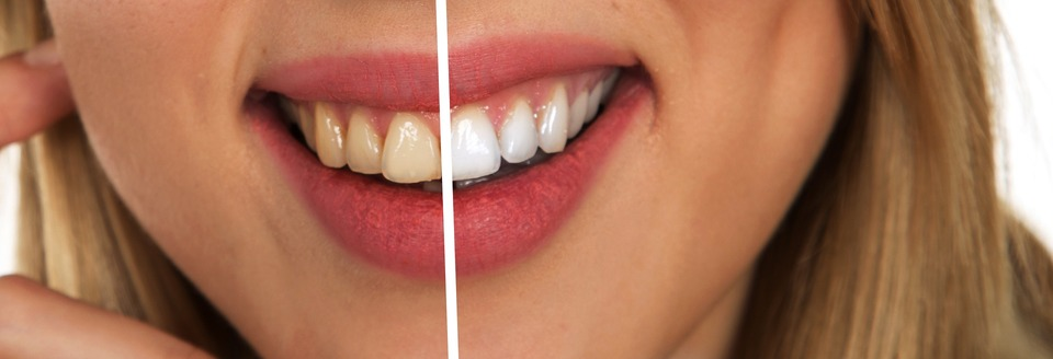 An image showing the before and after results of a teeth whitening procedure.
