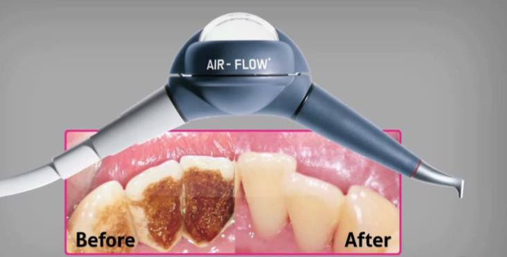 An image of teeth before and after stain removal, using airflow.