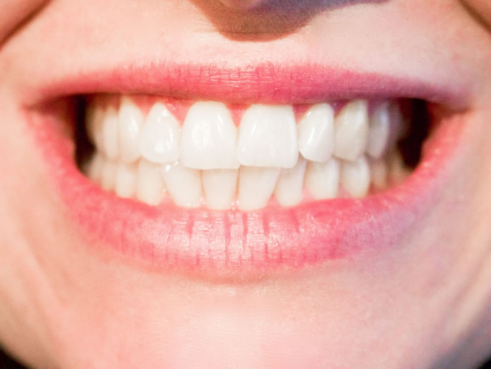A close up image of a smiling woman's mouth and teeth.