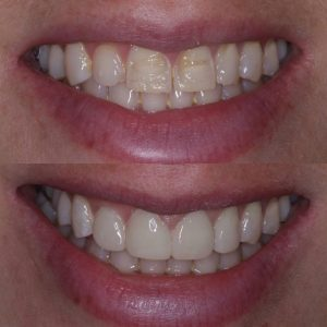 A image of a set of teeth, before an after composite bonding.