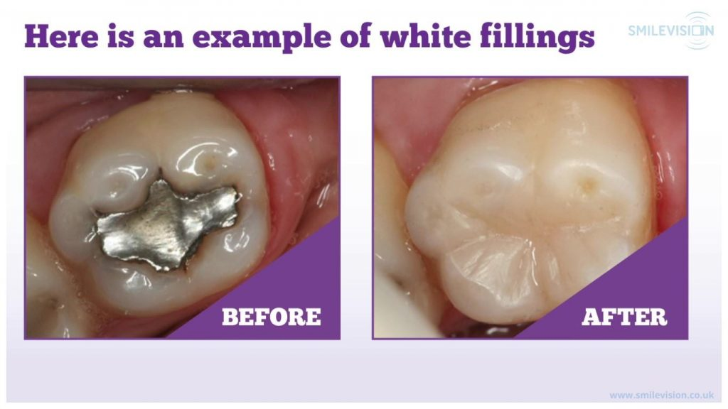 An image demonstrating the difference between a mercury filling and a composite filling in situ on a tooth.